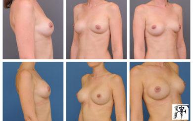 Chirurgie de changement de protheses mammaires