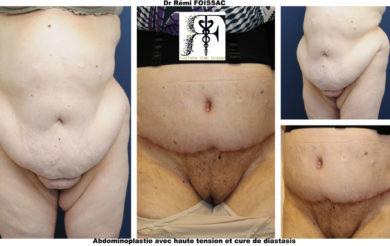 abdominoplastie trois