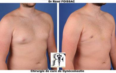 gynecomastie trois quart