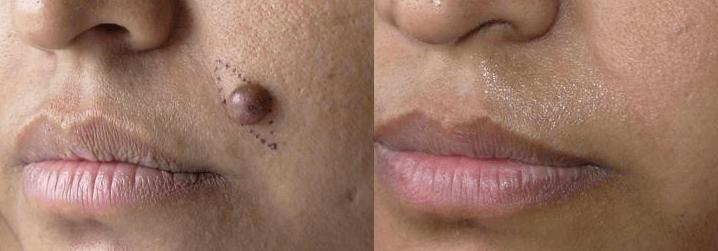 La Chirurgie Des Grains De Beauté Chirurgie Plastique