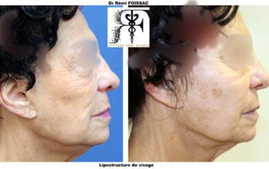 Lipostructure visage