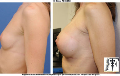 Protheses mammaires composites profil