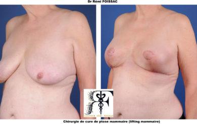 Ptose mammaire 2