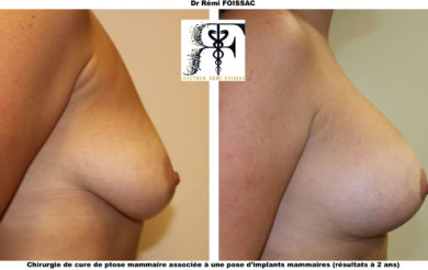 mastopexie prothèses profil