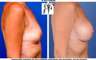 protheses mammaires anatomiques profil