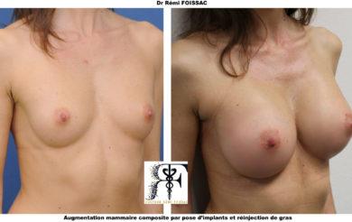 protheses mammaires composites trois quart
