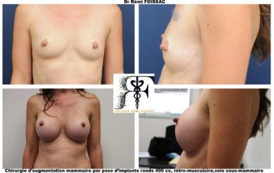 protheses mammaires grain de beauté 2