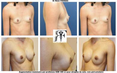 protheses mammaires pour atrophie