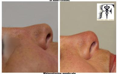rhinoplastie médicale 2