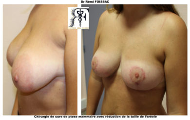 seins tubereux 3