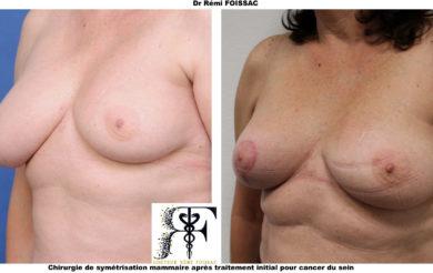 symétrisation mammaire